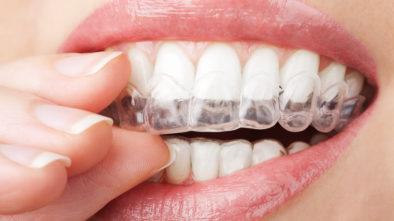 Best Dental Implant Clinic in Delhi