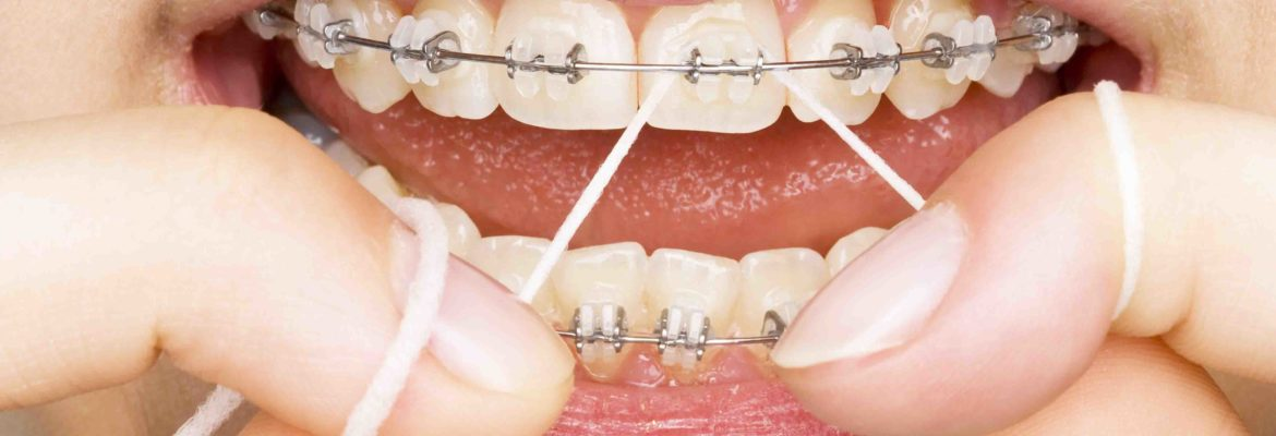 Excel Family Dental - Cleanings And Prevention Home Care